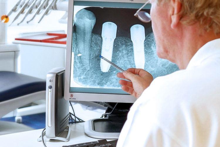Implantologie en botopbouw Tandarts van de Veer Zuidas